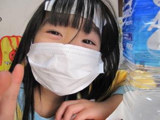 インフルエンザA型のチビS